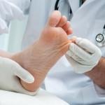 Kako se znebiti glivic na nohtih?